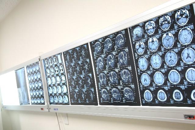 脳 レントゲン